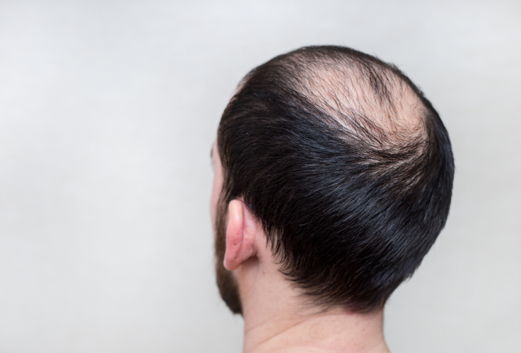 亜鉛は薄毛の予防にも役立つ