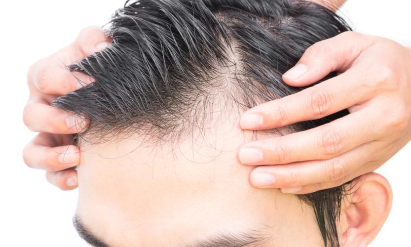 植毛と増毛とカツラの違い