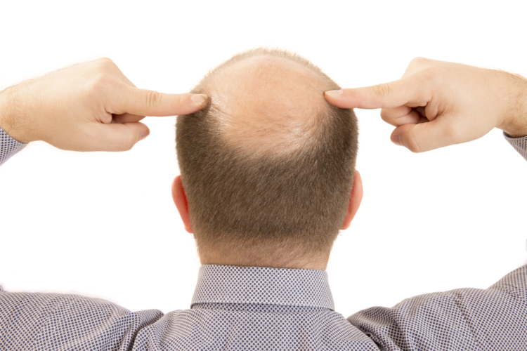 AGAを治療するよりも植毛や増毛、カツラで対応した方が手っ取り早くて効果的