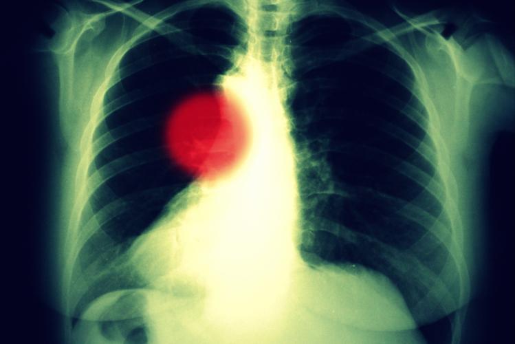 肺腺がんと肺がんとは違うものではない