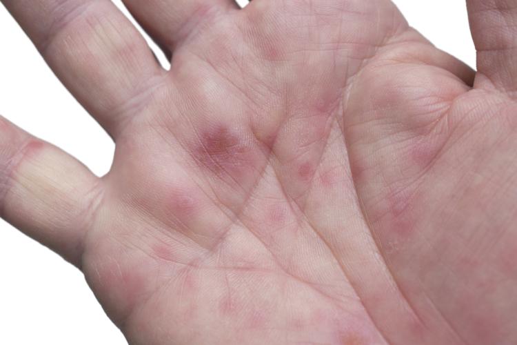 2017年に流行している手足口病とは