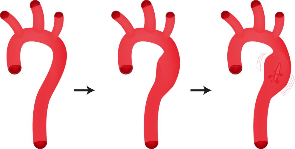解離性大動脈瘤をご存知ですか