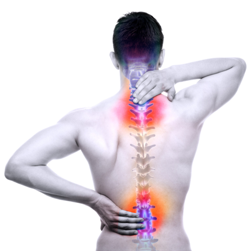 ぎっくり腰の正式名称は、急性腰痛症