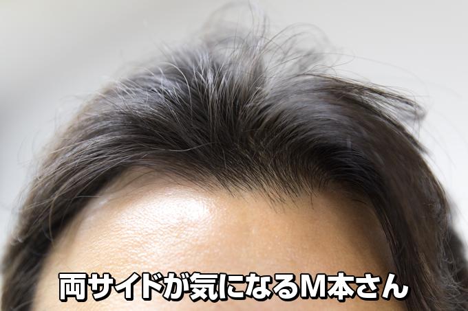 androgenetic-alopecia-test-kit01