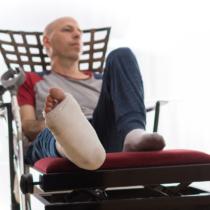 疲労骨折は初期症状では診断されにくいです