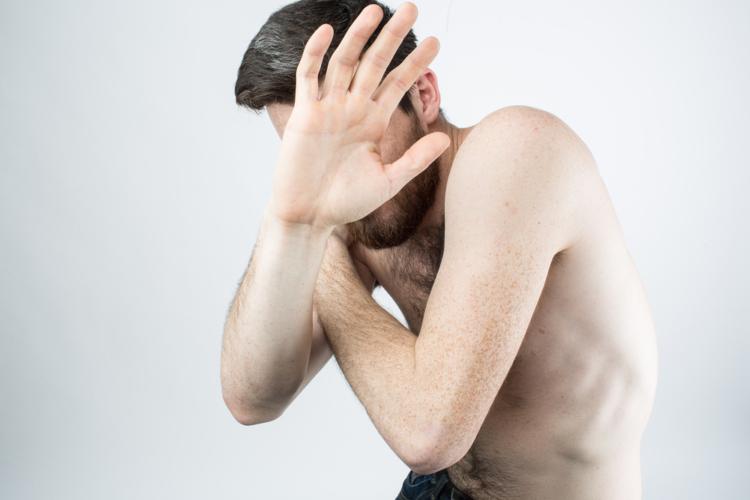 男性のシミは40代になると急増します。