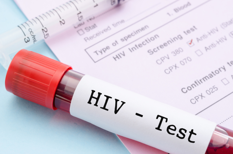 面倒でも定期的に性病検査を受けるべき