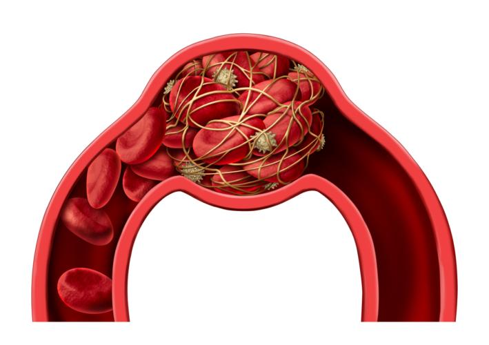 血栓を溶かし脳卒中を防ぐ