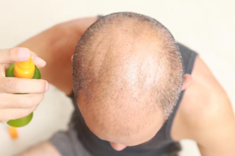 育毛剤は効かない?!薄毛のお悩みを解決する方法