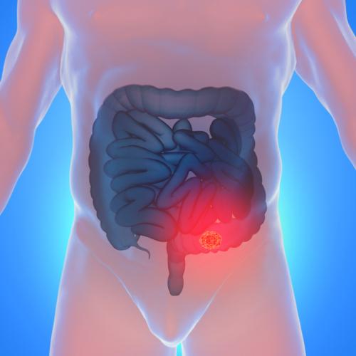 過敏性腸症候群と決めつける前に